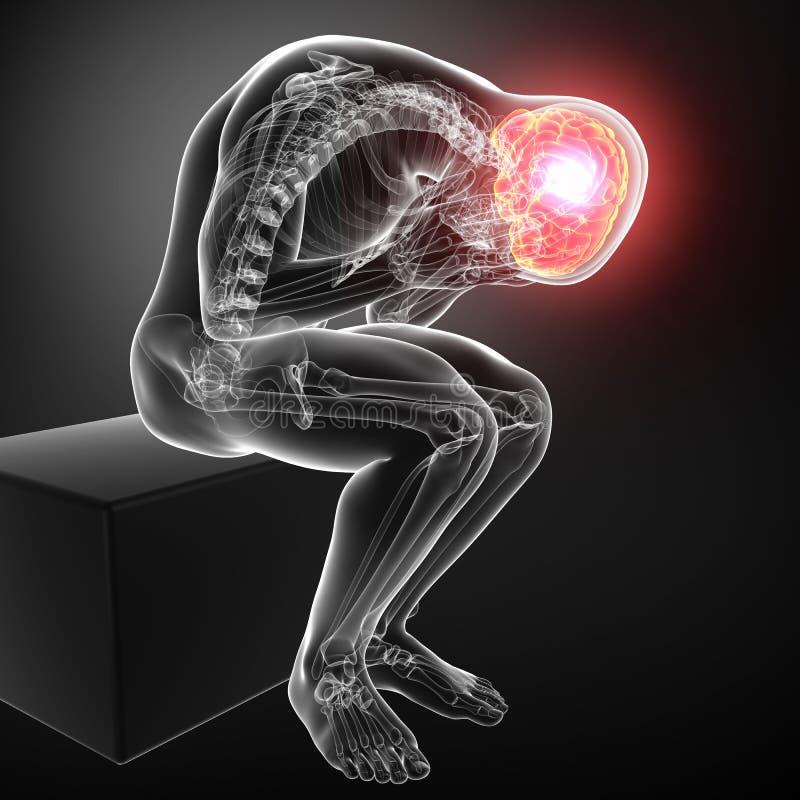 Головная боль мужчины в сером цвете иллюстрация вектора