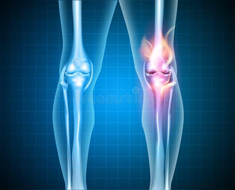 Горящее колено иллюстрация вектора