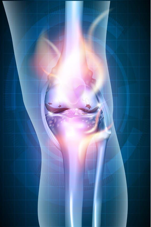 Горящее соединение колена ноги бесплатная иллюстрация