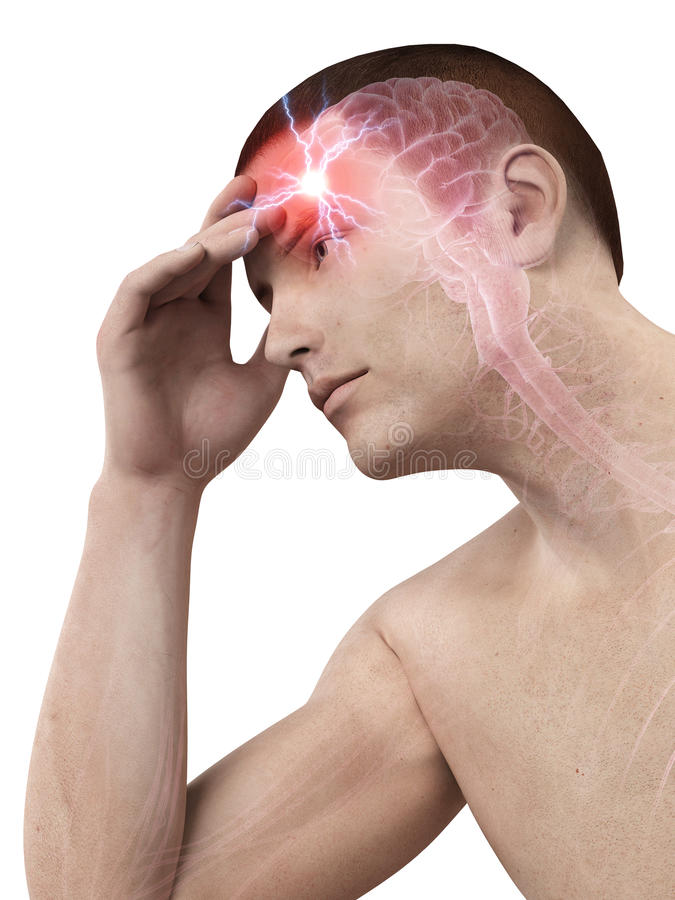 Головная боль/migrim иллюстрация вектора