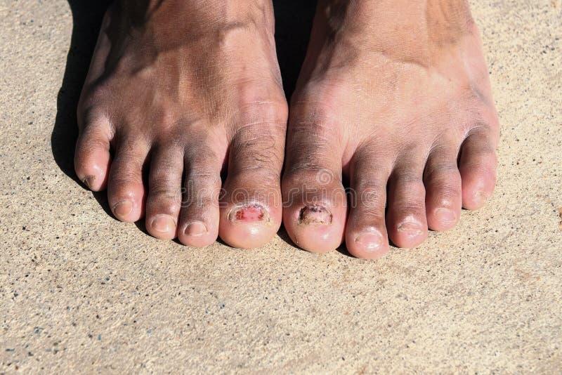 Грибковая инфекция детенышей ногтя стоковые изображения