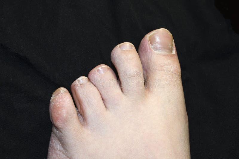 Грибковая инфекция на человеческом toenail Инфекция Toenail стоковое изображение rf