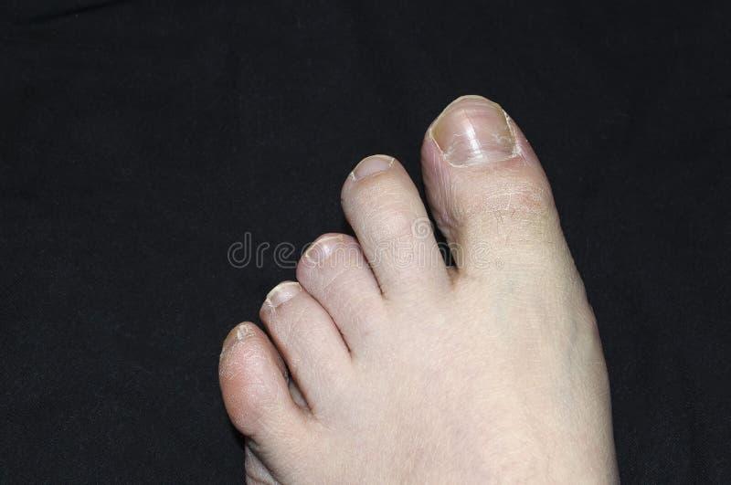 Грибковая инфекция на человеческом toenail Инфекция Toenail стоковое фото rf