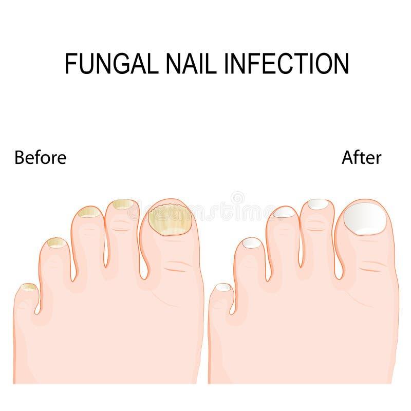 Грибковая инфекция ногтя Перед и после обработкой возобновлением иллюстрация вектора