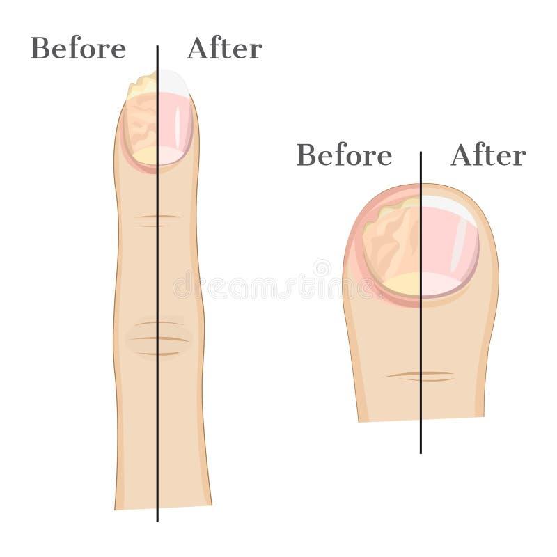 Грибковая инфекция ногтя иллюстрация вектора