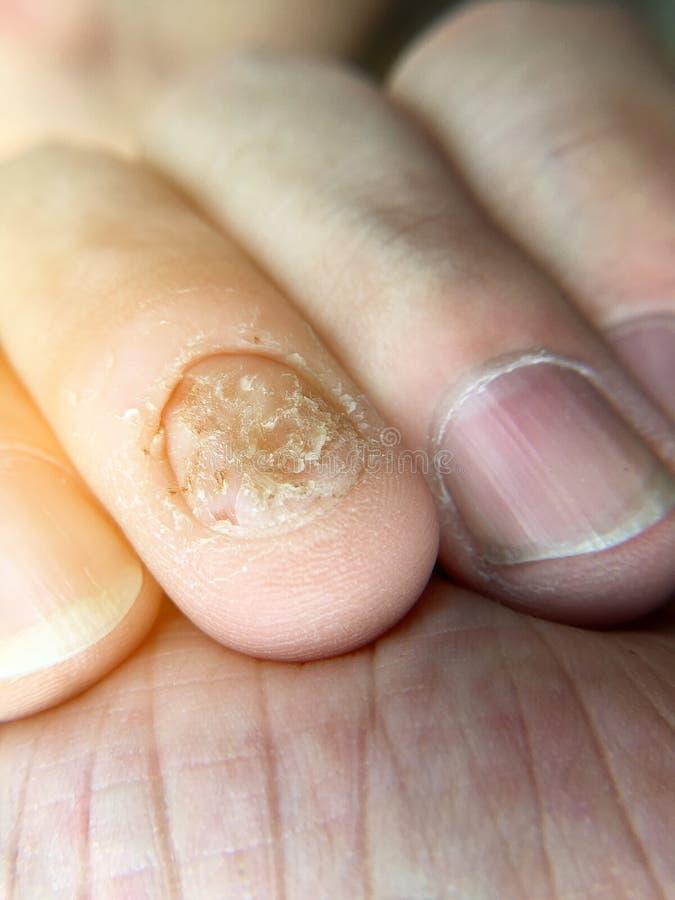 Грибковые инфекция и повреждение ногтя на человеческой руке Палец с onychomycosis, опостылеть сдержанными ногтями на руке ` s чел стоковые фото