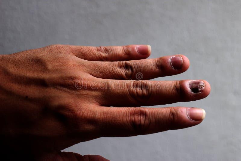 Грибная инфекция на ногтях руке, пальце с onychomycosis - мягкий фокус стоковое фото