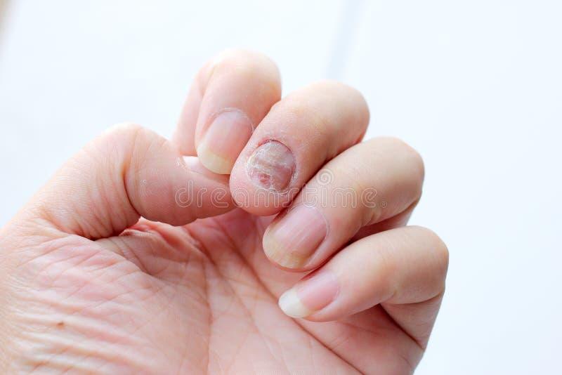 Грибная инфекция на ногтях руке, пальце с onychomycosis - мягкий фокус стоковые фотографии rf