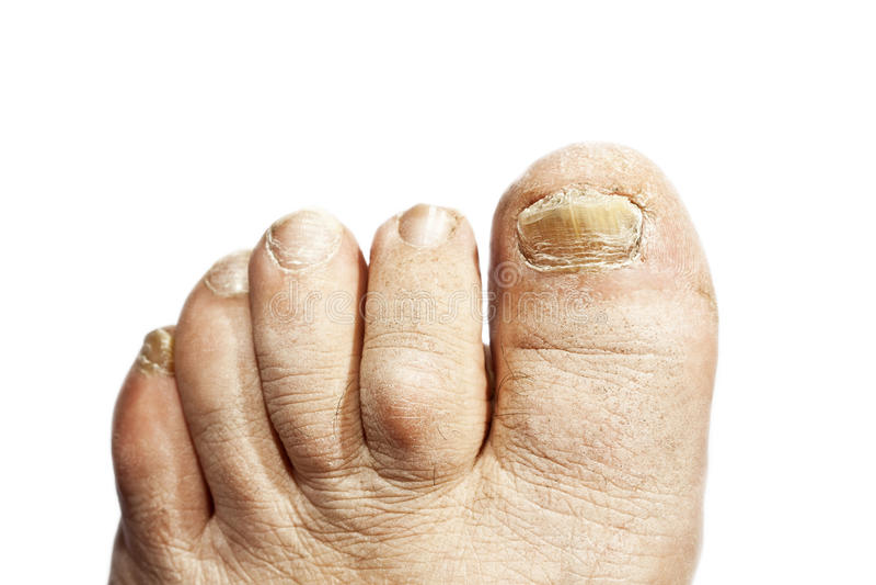 Грибная инфекция на ногтях стоковые фото