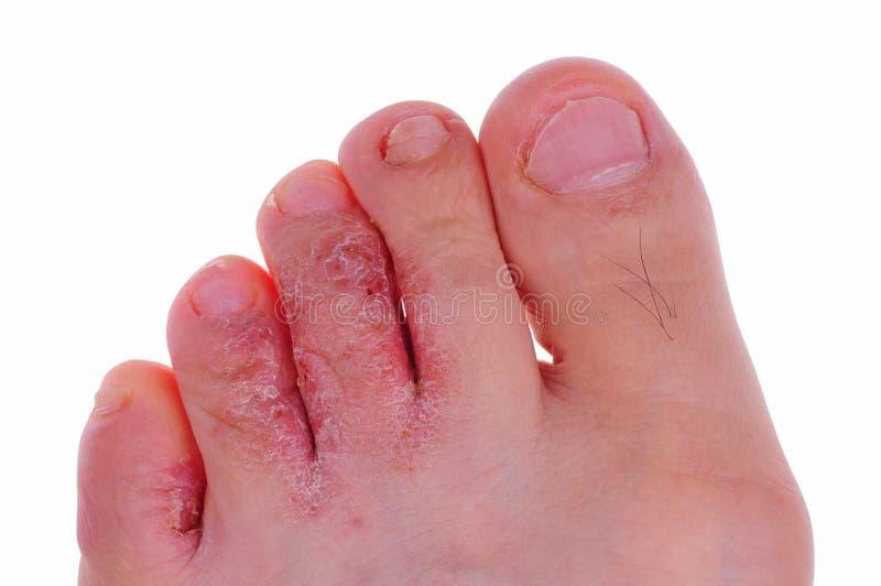 грибок ноги s спортсмена стоковые изображения