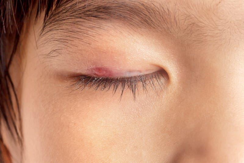 Глазная инфекция хлева стоковое изображение rf