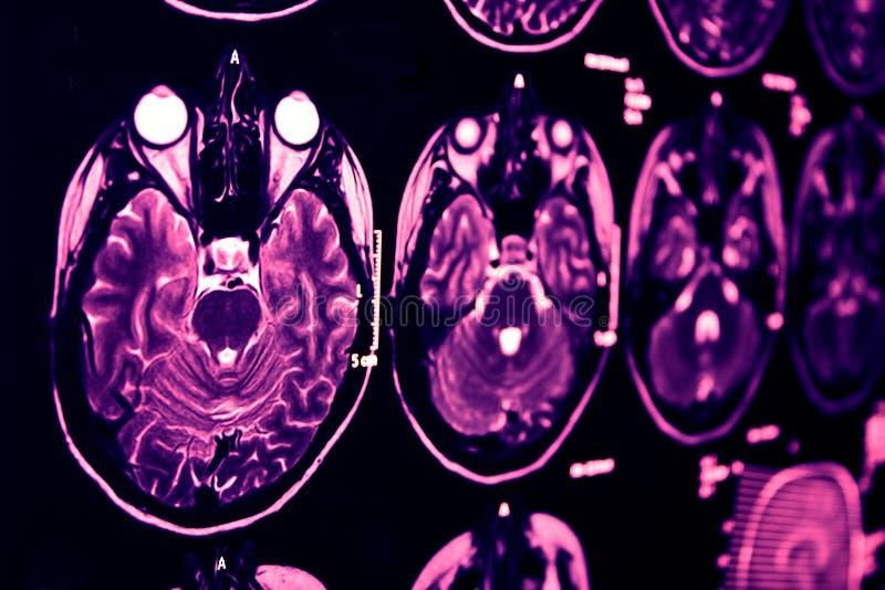 г-н резонанс голубого мозга магнитный стоковое изображение rf