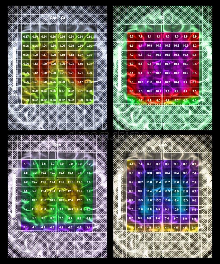 Г-Н спектроскопия мозга стоковая фотография rf