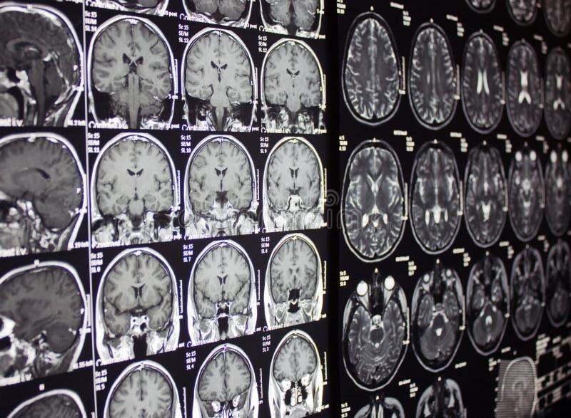 г-н mri мозга стоковые фото