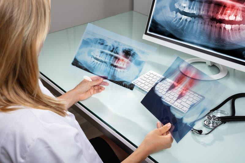 Дантист смотря рентгеновский снимок зубов стоковая фотография