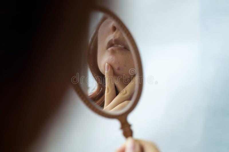 Девушка держит небольшое зеркало перед ей и рассматривает кожу на ее стороне с угорь Забота для кожи проблемы стоковое изображение