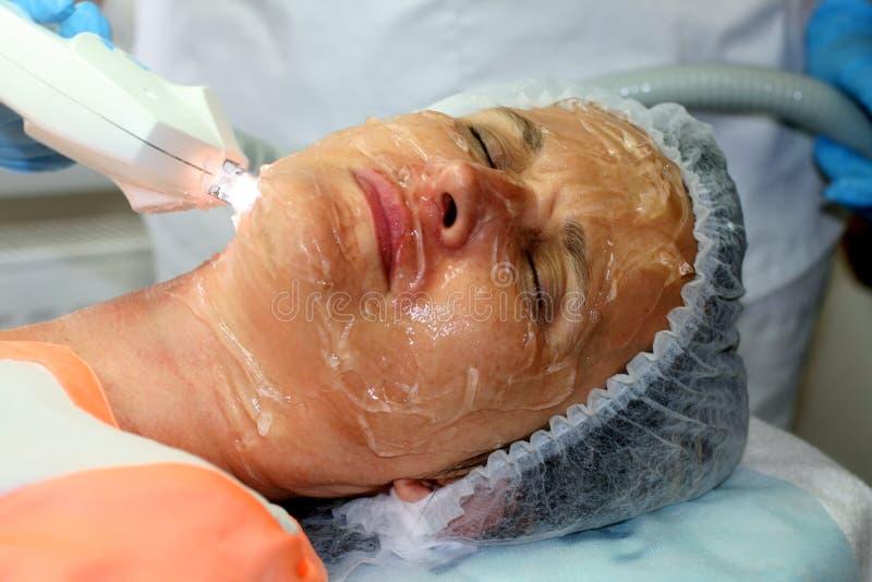 Девушка на косметической процедуре Чистка стороны Частичное подмолаживание Botox Resurfacing лазера подниматься elos стоковое изображение