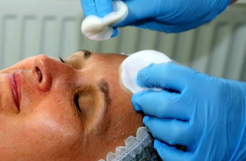 Девушка на косметической процедуре Чистка стороны Частичное подмолаживание Botox Resurfacing лазера подниматься elos стоковые изображения rf
