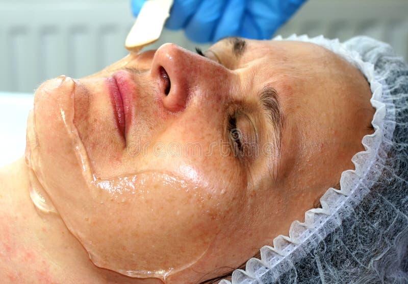 Девушка на косметической процедуре Чистка стороны Частичное подмолаживание Botox Resurfacing лазера подниматься elos стоковые изображения