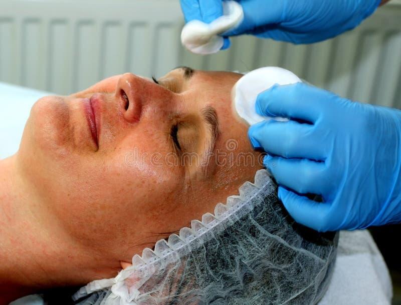 Девушка на косметической процедуре Чистка стороны Частичное подмолаживание Botox Resurfacing лазера подниматься elos стоковая фотография rf