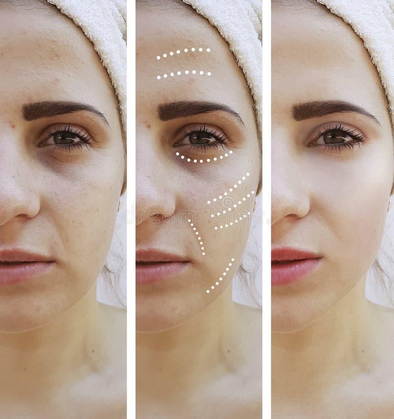 Девушка сморщивает глаза перед и после поднимаясь процедурами по обработки влияния удаления коррекции стоковые изображения rf