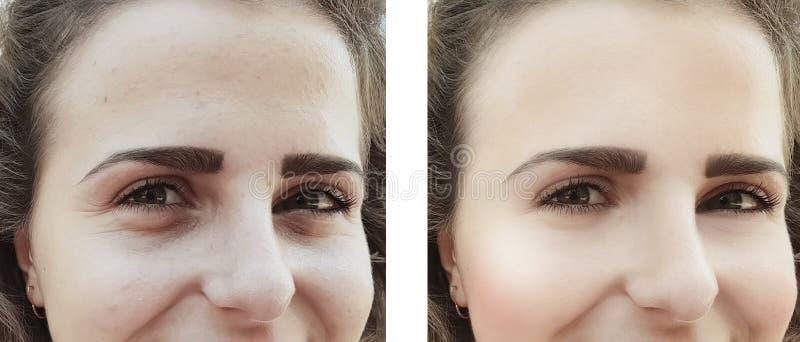 Девушка сморщивает глаза раньше после коррекции сумок процедур стоковые фотографии rf