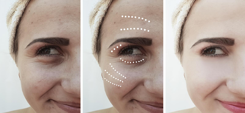 Девушка сморщивает глаза раньше после поднимаясь процедур по обработки влияния удаления коррекции стоковые фото