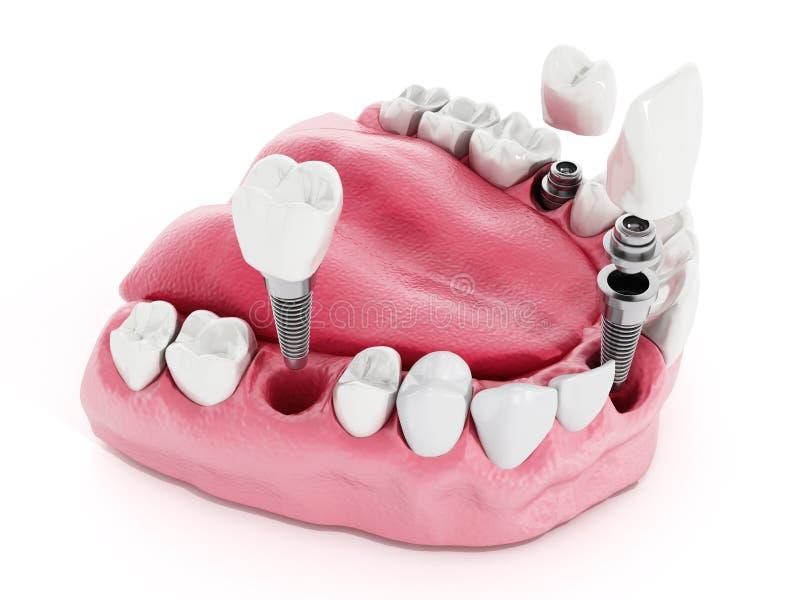 Деталь зубного имплантата бесплатная иллюстрация