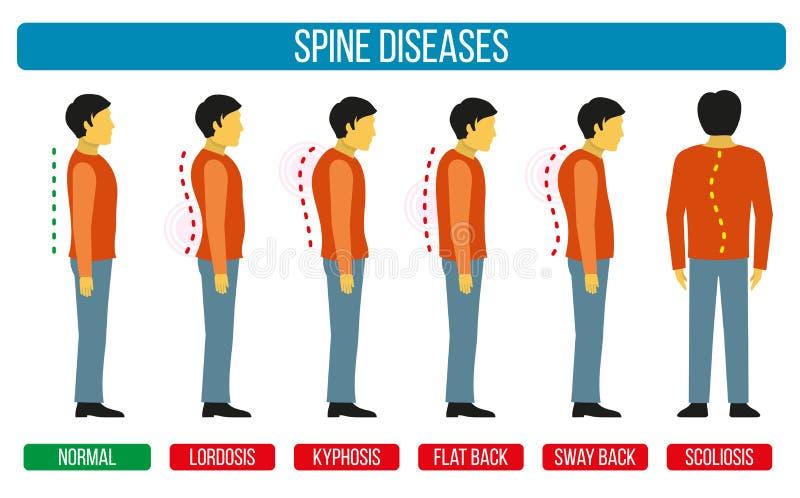 Дефект позиции тела Infographics вектора заболеваний позвоночника Диаграммы сколиоза и лордоза медицинские бесплатная иллюстрация
