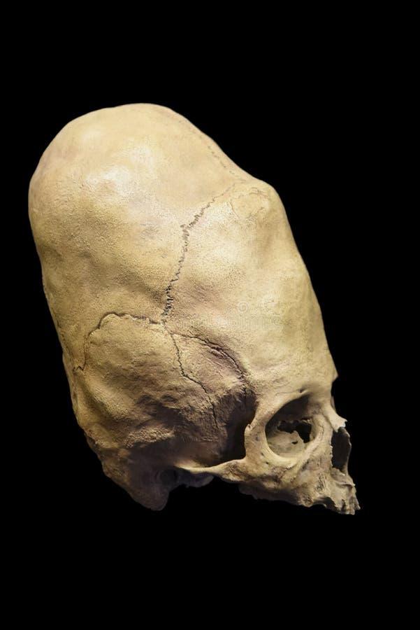 Деформированный старый перуанский череп стоковая фотография rf