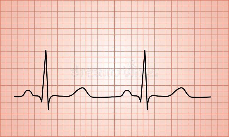 Диаграмма биения сердца нормальная ECG бесплатная иллюстрация