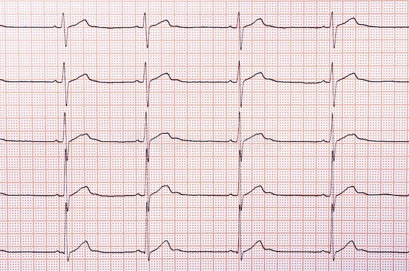 Диаграмма ритма сердца стоковое фото rf