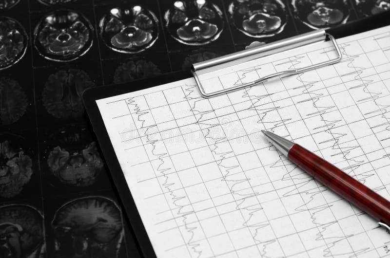 Диаграмма ECG электрокардиограммы, анализ сердца Черная доска сзажимом для бумаги стоковая фотография