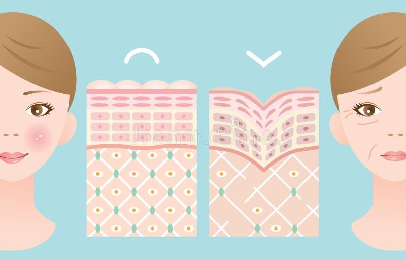Диаграммы молодой кожи и старой кожи бесплатная иллюстрация