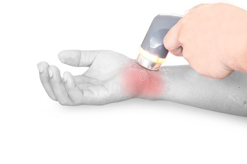 Диатермия ультразвука на правом запястье руки стоковая фотография rf