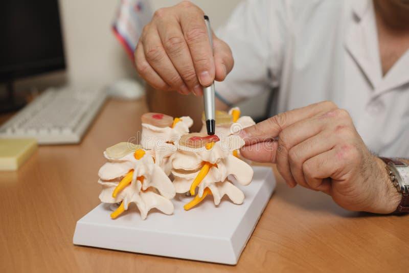 Доктор объясняет модель позвоночника в его офисе на больнице стоковые изображения rf