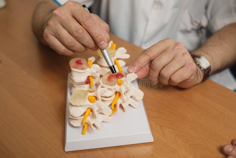 Доктор объясняет модель позвоночника в его офисе на больнице стоковые фотографии rf