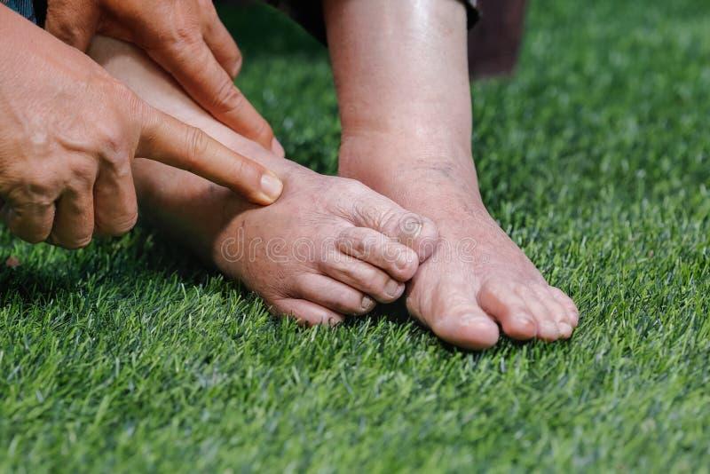 Доктор определяя пожилую опухнутую ногу стоковая фотография rf