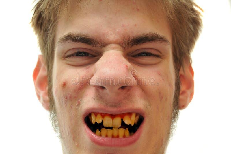 желтый цвет зубов стоковые фото