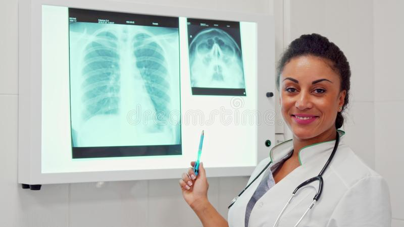 Женская ручка пунктов доктора на позвоночнике на изображении рентгеновского снимка стоковое фото