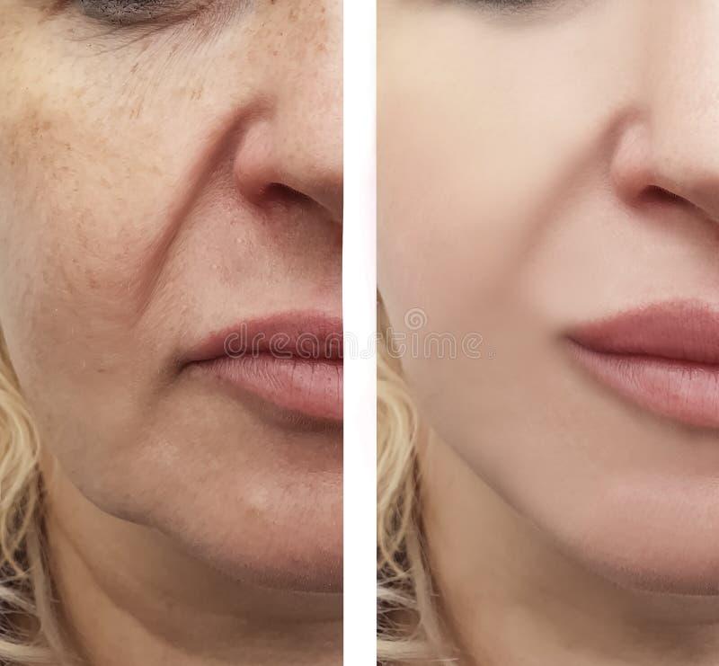 Женские лицевые морщинки перед и после процедурами стоковое изображение rf