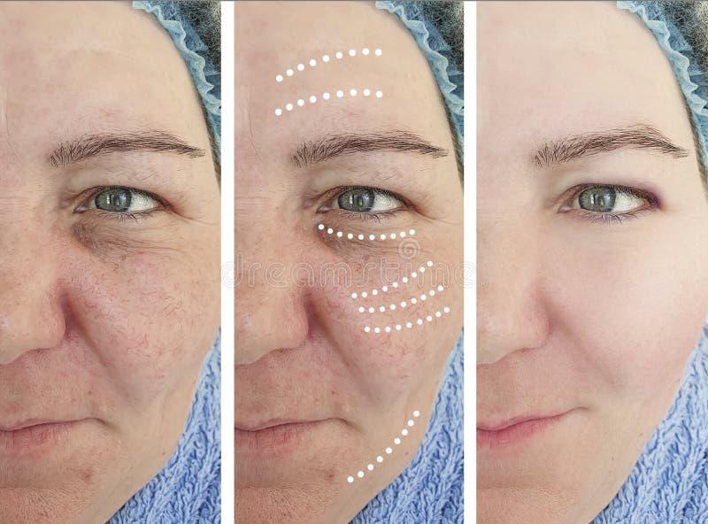 Женские морщинки раньше после коррекции косметологии подъема разнице в коллажа влияния зрелой стоковые фотографии rf