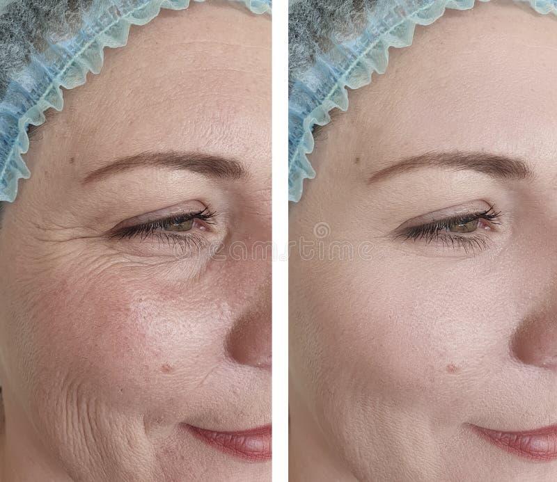 Женские морщинки раньше после процедур по коррекции влияния поднимая стоковое фото rf