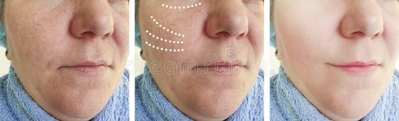 Женские пожилые морщинки раньше после коррекции косметологии подъема разнице в коллажа влияния зрелой стоковые изображения