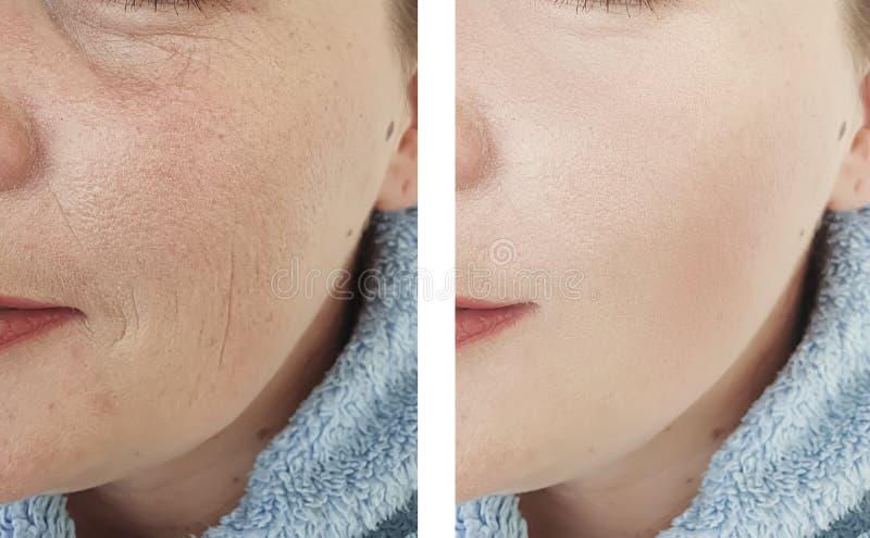 Женские пожилые морщинки раньше после процедур по коррекции влияния п стоковое фото rf
