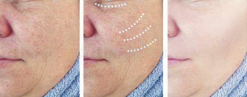 Женские пожилые морщинки удаления раньше после коррекции косметологии подъема разнице в коллажа влияния зрелой стоковое изображение rf