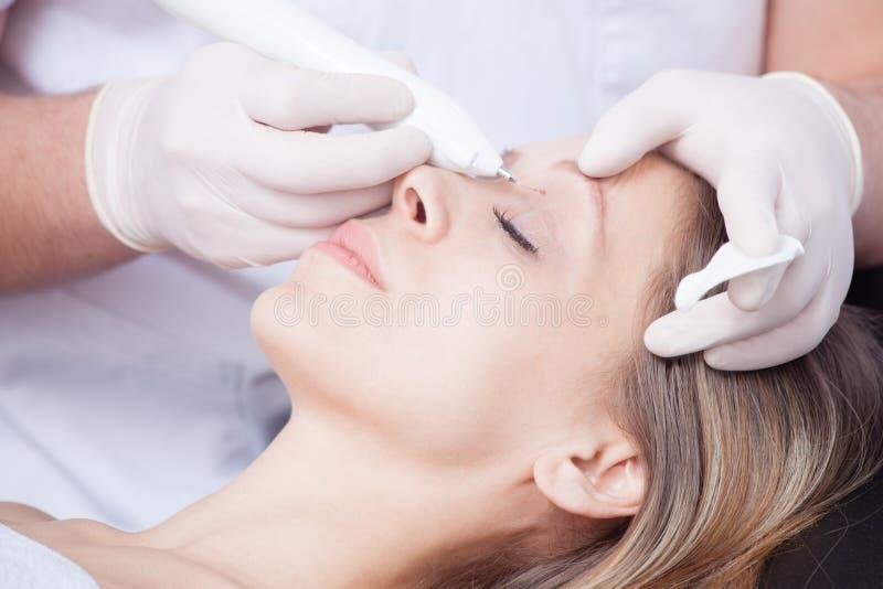 Женщина во время удаления бородавочки над глазом стоковые изображения rf
