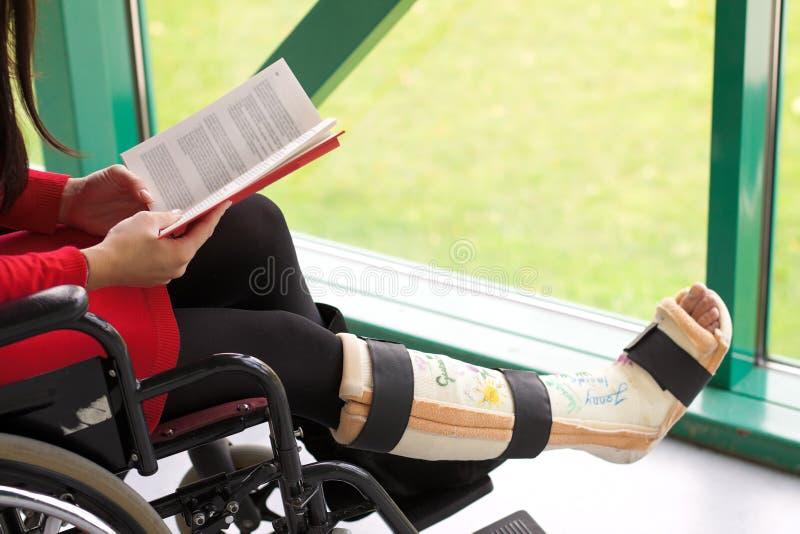 женщина гипсолита ноги стоковое изображение rf