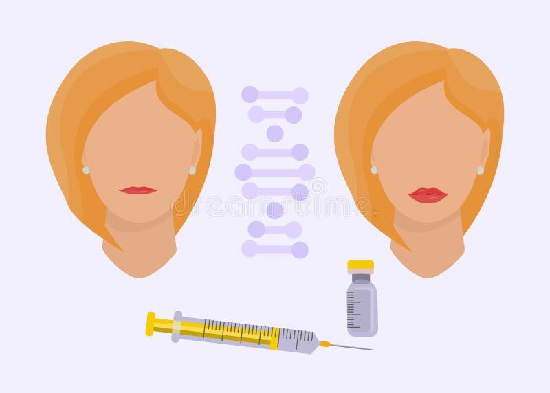 Женщина делает процедуру впрыски красоты для увеличения губы Губы перед и после hyaluronic кисловочным заполнителем губы бесплатная иллюстрация