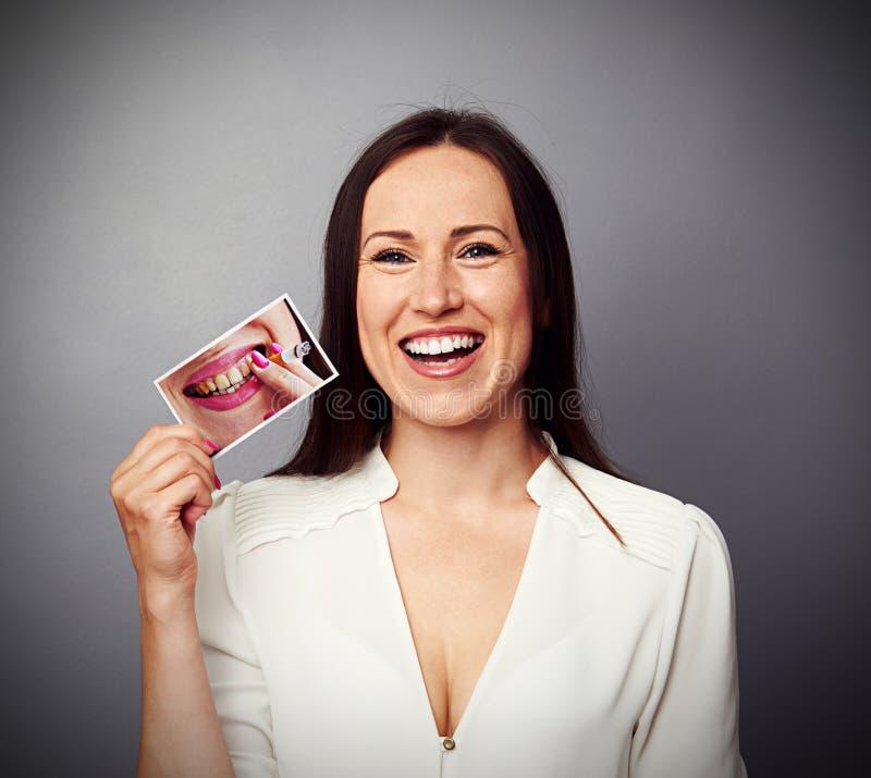 Женщина держа изображение с пакостными желтыми зубами стоковое изображение rf